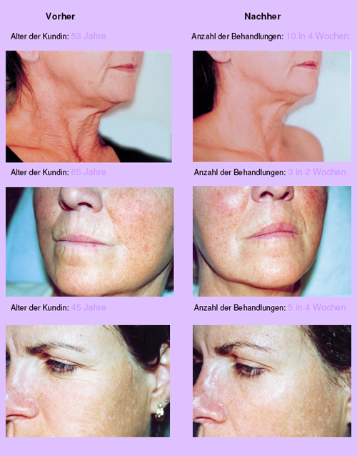 Before_and_after_Nora _Bode_OXYjet_treatment
